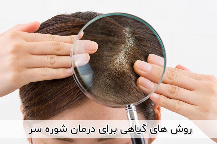 درمان سریع شوره سر , درمان شوره سر چرب , درمان شوره سر خشک , بهترین شامپو برای شوره سر , تجربه درمان شوره سر , درمان شوره و خارش سر , درمان شوره سر با اسپند , درمان شوره سر با روغن زیتون