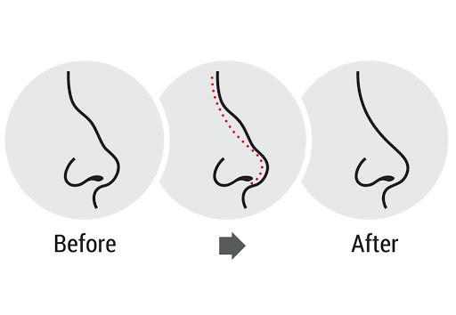 جراحی زیبایی بینی | عمل بینی | لیفت سینه | لیپوماتیک