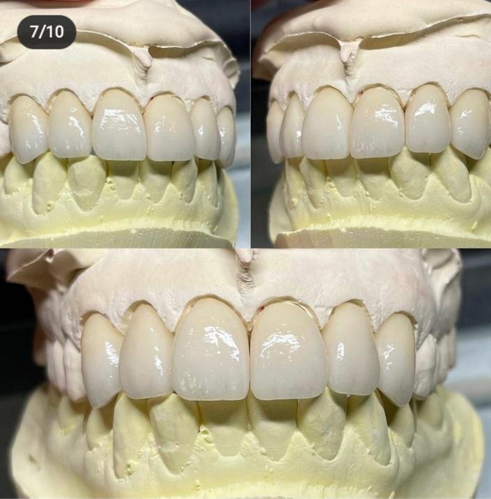 دندانسازی و ساخت انواع پروتزهای دندانی